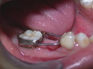 Mantenedor de espacio fijo con un ortodoncista sevilla
