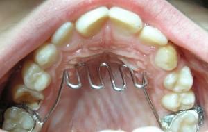 rejilla lingual en ortodoncista sevilla