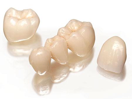 Prótesis dental de coronas fijas provisionales