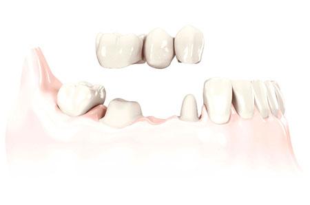 Prótesis dental en puente de porcelana fijo definitivo