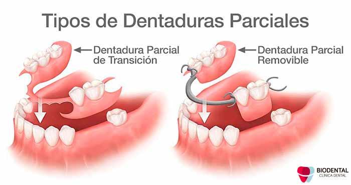 Prótesis dentales parciales
