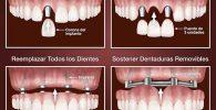 Opciones con implantes dentales