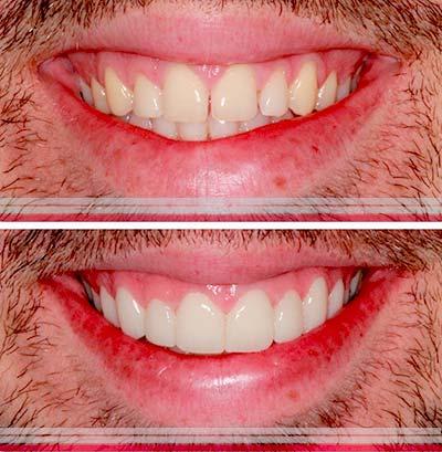 Tipos de fundas dentales en Sevilla