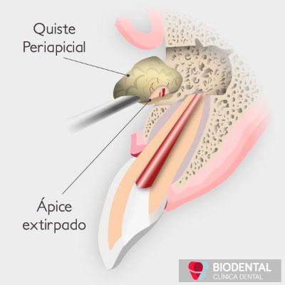 Cirugía oral Apicectomía en Sevilla