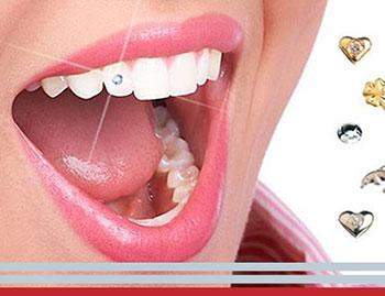 Joyería dental: Brillantes en el diente