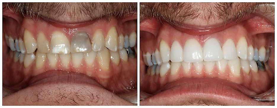 Carillas dentales en porcelana