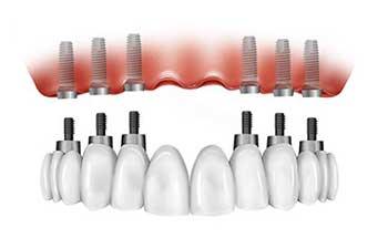 Prótesis completa-porcelana sobre implantes en Sevilla