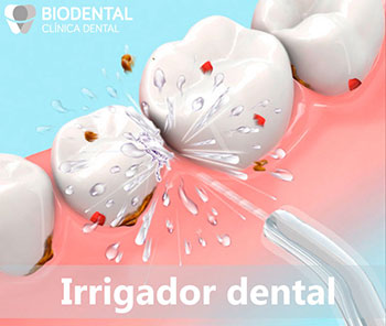 Irrigador dental para el cuidado de tus implantes dentales en Sevilla Centro