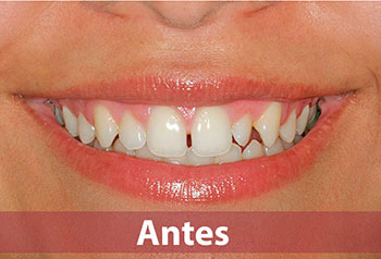 Estética dental sevilla
