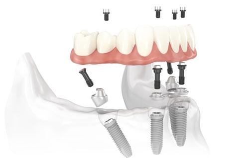 Sobredentaduras y prótesis híbridas. Caso inferior sobre 4 implantes dentales
