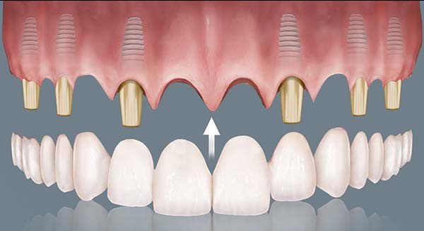 Prótesis de porcelana en vez de sobredentaduras o prótesis híbridas