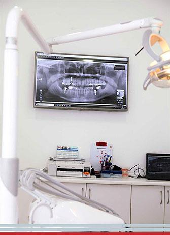 Gabinete Implantología dental Sevilla centro
