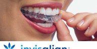 ferulas invisalign y precio de una ortodoncia en sevilla