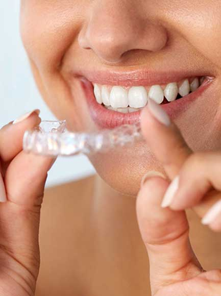 Invisalign sevilla: dentista sevilla centro