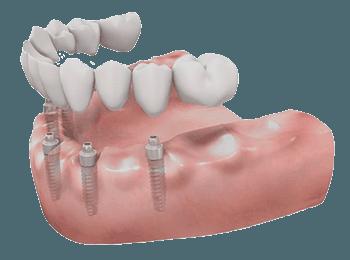 protesis completa porcelana implantes