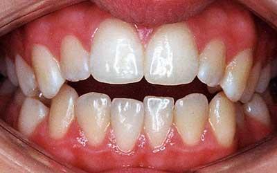 Maloclusión dental por Mordida abierta