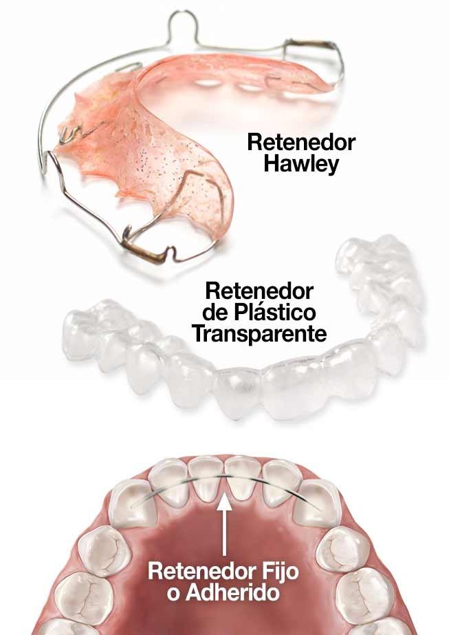 tratamientos de retención en ortodoncia