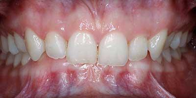 maloclusión dental por sobremordida superior