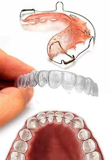 Sistemas de retención tras ortodoncia