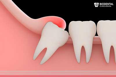 Ejemplo de absceso dental