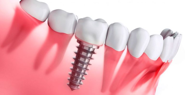 clinica implantes dentales sevilla