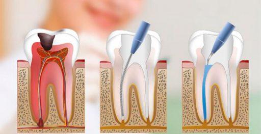 endodoncia sevilla