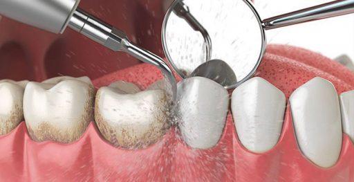 limpieza dental sevilla centro