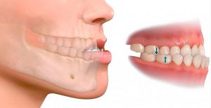 Maloclusión dental en Sevilla