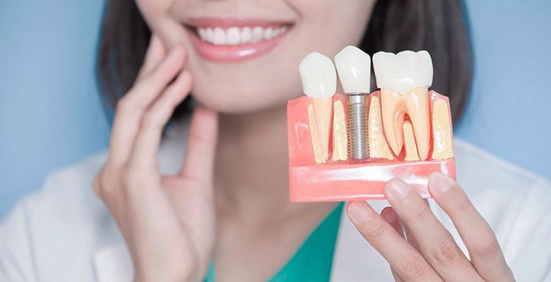 preguntas frecuentes implantes dentales